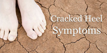 cracked heels symptoms at Bella Reina Spa