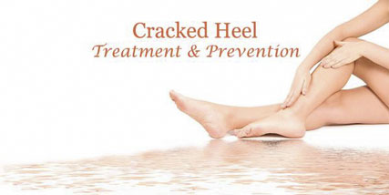 prevention of cracked heels at Bella Reina Spa