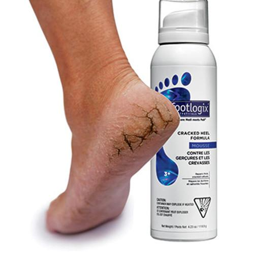 Footlogix® 3+ Extra Dry Cracked Heel Formula Mousse (4.2oz)